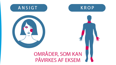 Områder der kan påvirkes af eksem ansigt, cirkel med en kvinde inden i, krop en mande krop i en cirkel