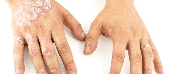 Mellem fingrene eksem Eksem behandling