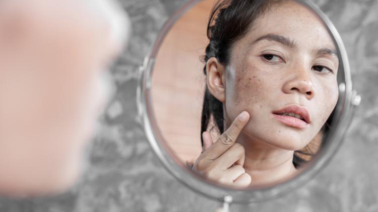 Kvinde med pigmentforandringer og graviditetsmaske kigger sig selv i spejl