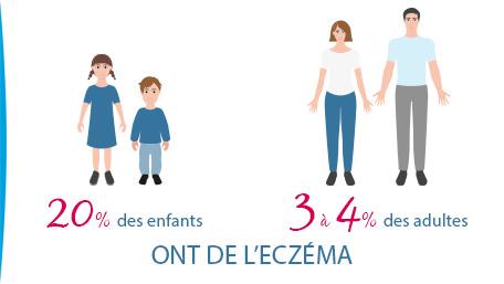 INFOGRAPHIE-CHIFFRES-ECZEMA-ENFANTS-ADULTES