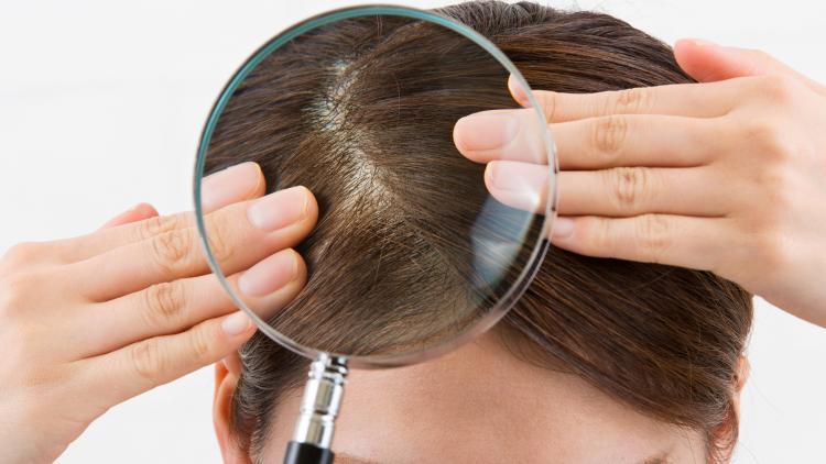 Cos'è il cuoio capelluto sensibile? | Ducray