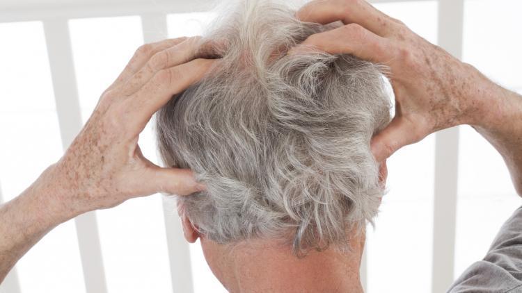 Si può soffrire di cuoio capelluto sensibile tutta la vita? | Ducray