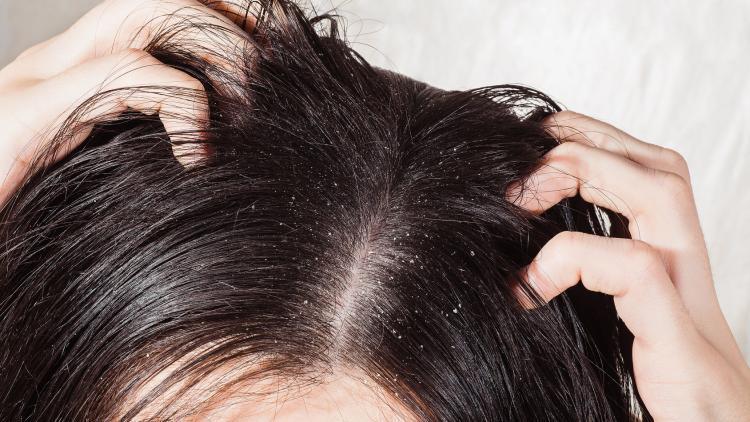 Può capitare che il cuoio capelluto sensibile sia accompagnato da forfora? | Ducray