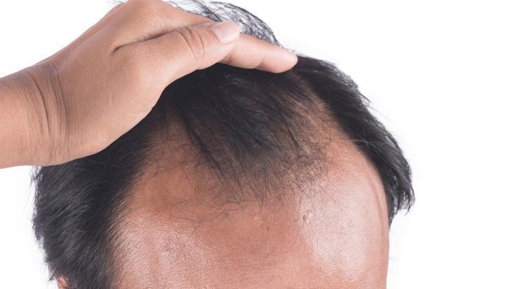 Qual è la differenza tra effluvio e alopecia? | Ducray