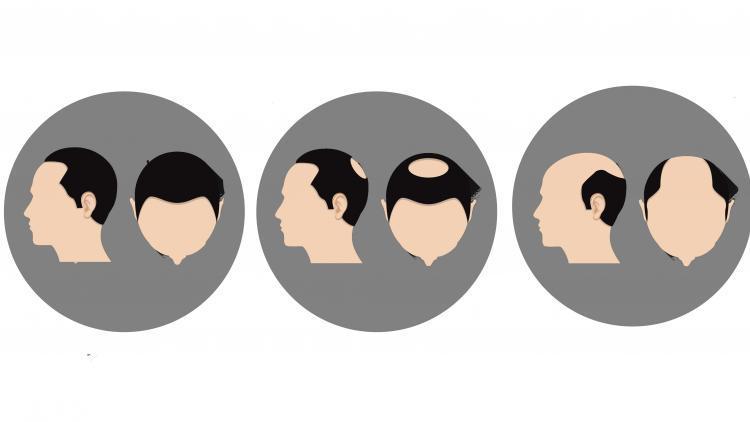 Quali sono i diversi tipi di caduta dei capelli?   Ducray