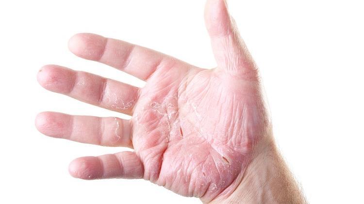 eczema-altere-barriere-cutanee