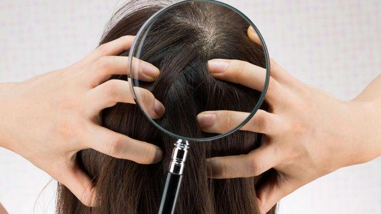 Il prurito del cuoio capelluto. Perché? Come? | Ducray