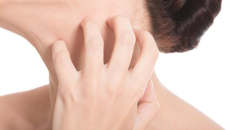 eczema-definition